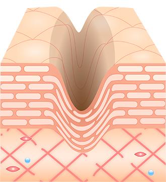 肌の再生医療 治療前